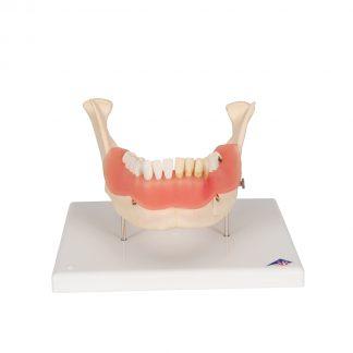 Choroby zębów