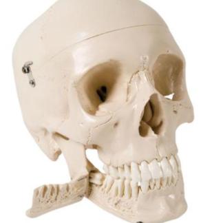 Czaszka z wyciąganymi zębami