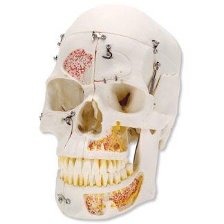 Luksusowa czaszka stomatologiczna