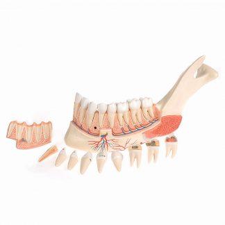 Połowa szczęki z chorymi zębami