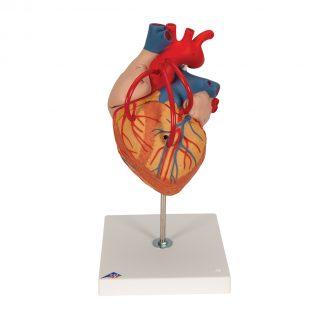 Serce z bajpasami