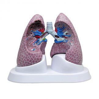 Model płuc z patologiami