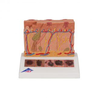 Model raka skóry