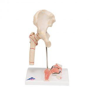 Staw biodrowy ze złamaną kością i zwyrodnieniami