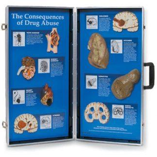 Skutki używania narkotyków