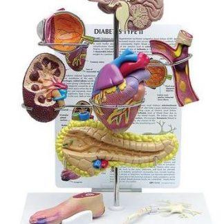 Cukrzyca typu II