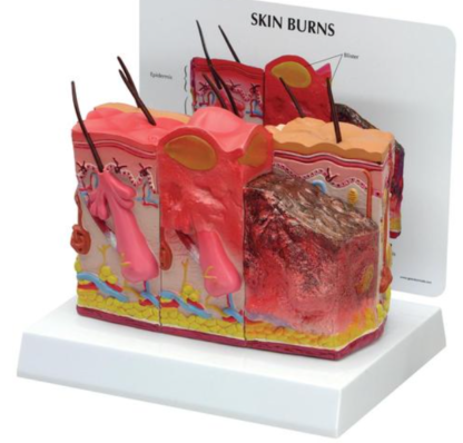 Skóra poparzona - skóra zdrowa