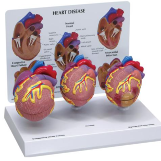 Model chorób serca